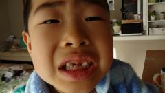 前歯がない。。。
